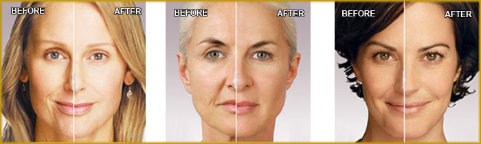 Juverderm-Image Before and After